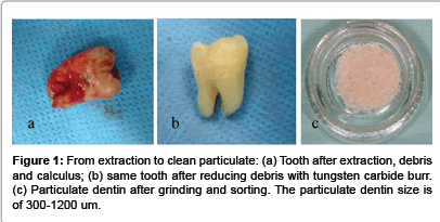 interdisciplinary-medicine-Tooth-after-extraction
