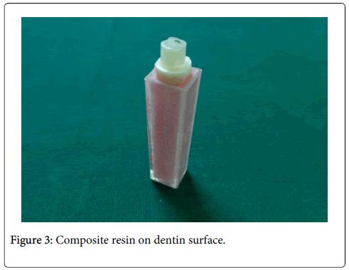 interdisciplinary-medicine-dental-science-Composite-resin