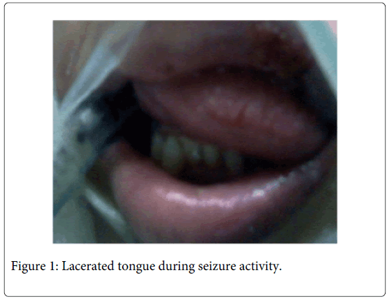 interdisciplinary-medicine-dental-science-Lacerated-tongue-seizure