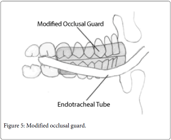 interdisciplinary-medicine-dental-science-Modified-occlusal-guard