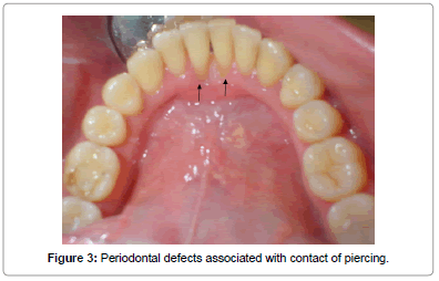 interdisciplinary-medicine-dental-science-Periodontal-defects-contact-piercing