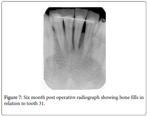 interdisciplinary-medicine-dental-science-Six-month-post-operative