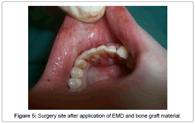 interdisciplinary-medicine-dental-science-Surgery-site-application-EMD