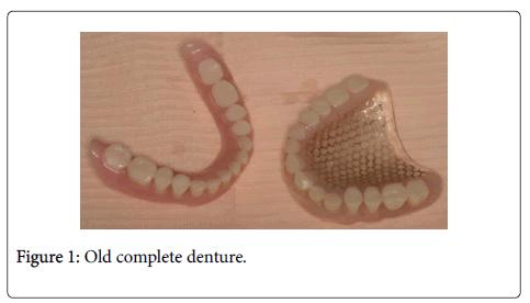 interdisciplinary-medicine-dental-science-denture