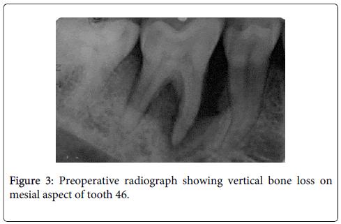 interdisciplinary-medicine-dental-science-mesial-aspect-tooth