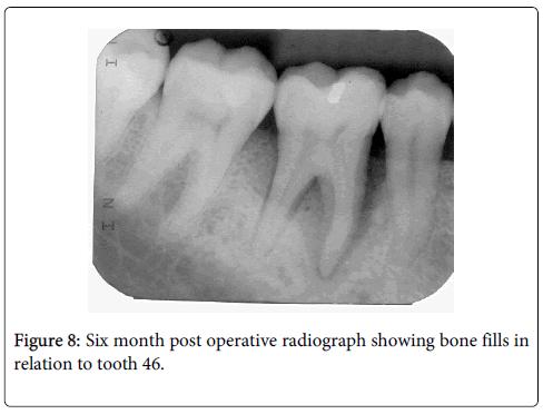 interdisciplinary-medicine-dental-science-operative-radiograph-showing