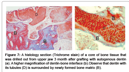 interdisciplinary-medicine-dentin-bone-interface