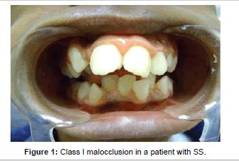 interdisciplinary-medicine-malocclusion-patient