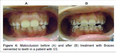interdisciplinary-medicine-treatment-Braces-cemented