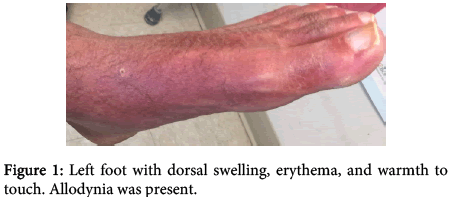 interdisciplinary-microinflammation-dorsal-swelling-erythema