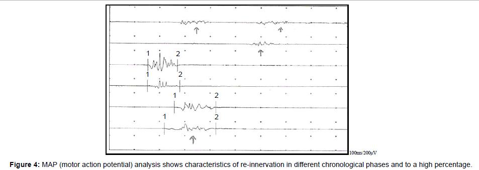 international-journal-of-neurorehabilitation-chronological-phases