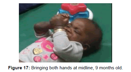 international-journal-of-neurorehabilitation-hands-midline