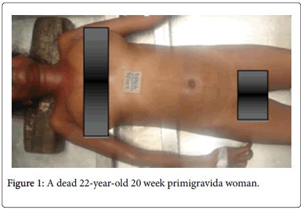 journal-forensic-medicine-primigravida-woman