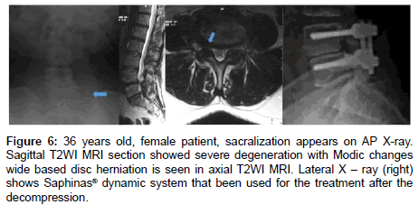 journal-spine-severe-degeneration