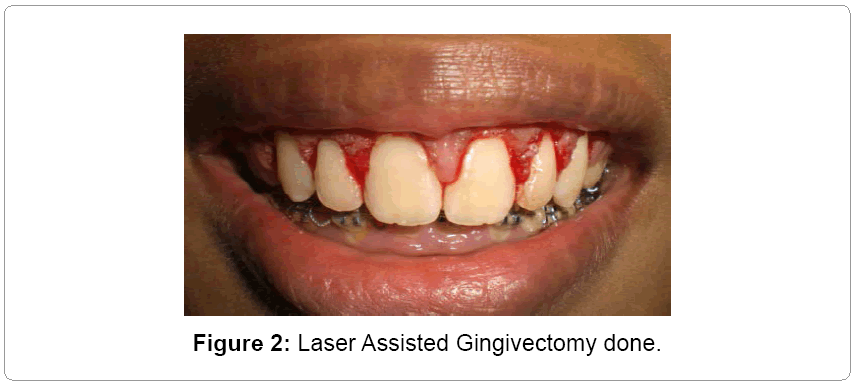 lasers-optics-Gingivectomy-done