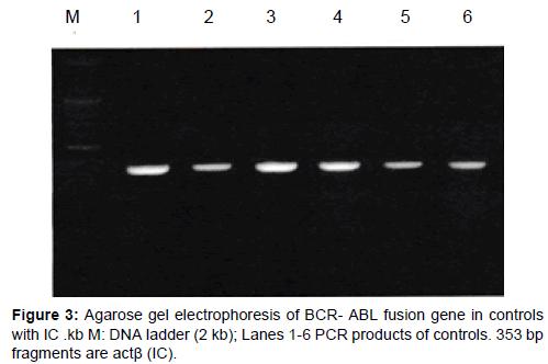 leukemia-ABL-fusion-gene