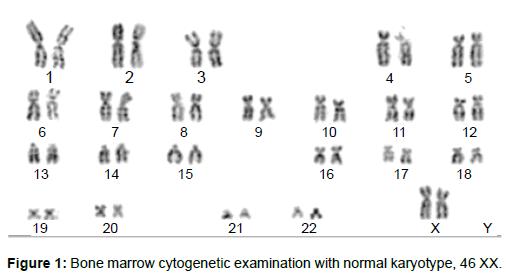 leukemia-Bone-marrow-cytogenetic