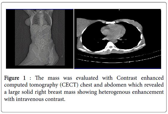 leukemia-Distribution-heterogenous-enhancement