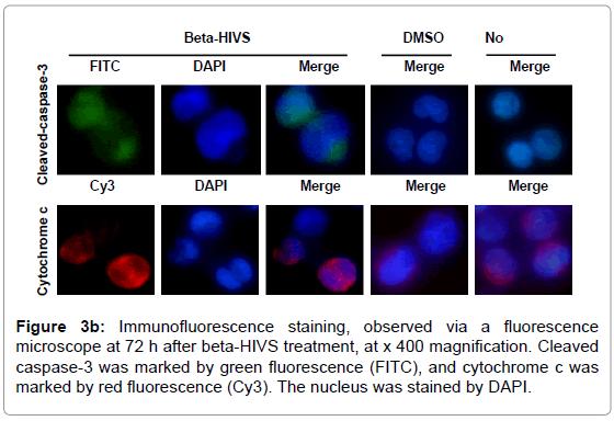 leukemia-Immunofluorescence