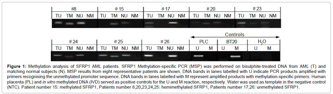 leukemia-Methylation-analysis
