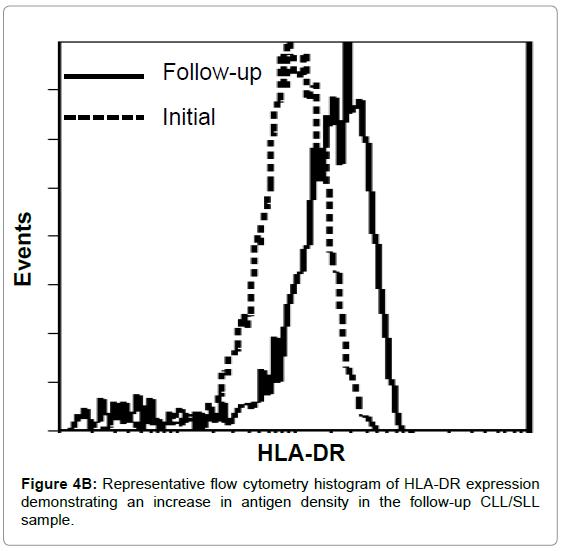 leukemia-cytometry-histogram
