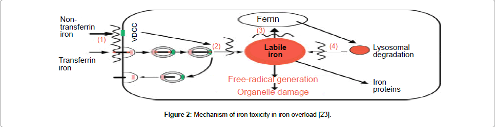 leukemia-iron-toxicity