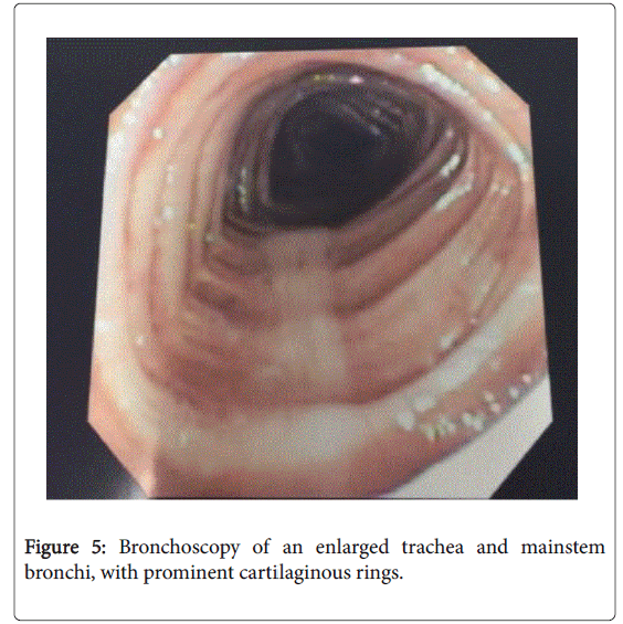 lung-diseases-treatment-enlarged-trachea