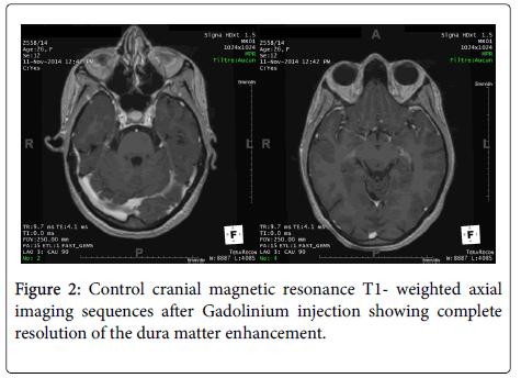 lupus-Control-cranial