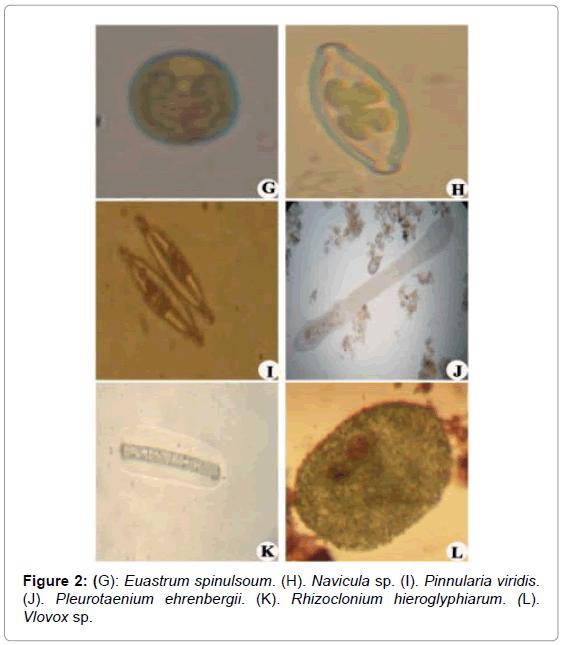 marine-science-research-Euastrum-spinulsoum