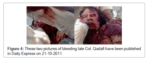 mass-communication-journalism-bleeding