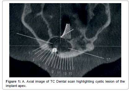 medical-implants-surgery-Axial-Dental-scan