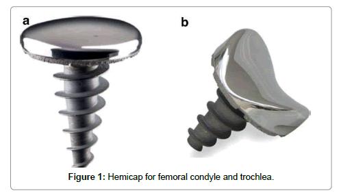 medical-implants-surgery-condyle