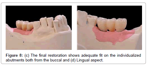 medical-implants-surgery-final restoration