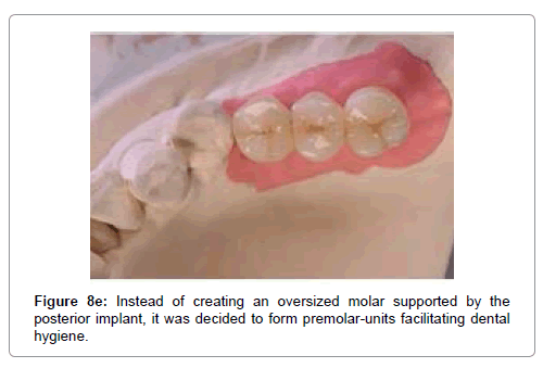 medical-implants-surgery-oversized molar
