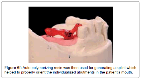 medical-implants-surgery-polymerizing