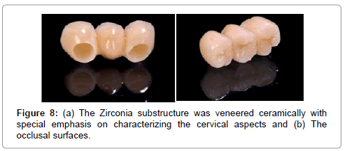medical-implants-surgery-zirconia-substructure