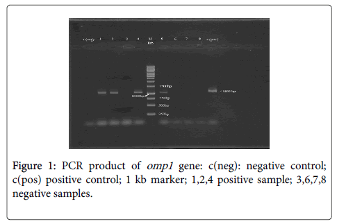 medical-microbiology-diagnosis-PCR-product-omp1-gene