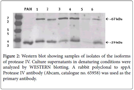 medical-microbiology-diagnosis-Western-blot-showing