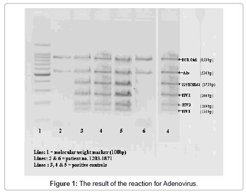 medical-microbiology-diagnosis-reaction-Adenovirus