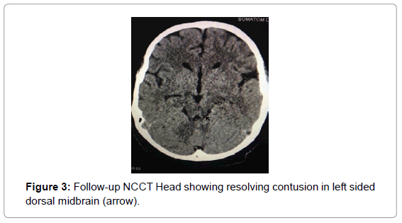 medical-reports-case-studies-follow-ncct-head
