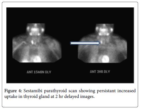 medical-surgical-pathology-Sestamibi-parathyroid