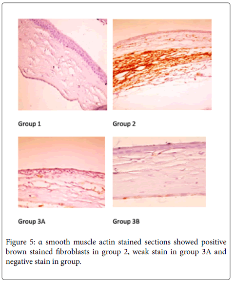 medical-surgical-pathology-brown-muscle