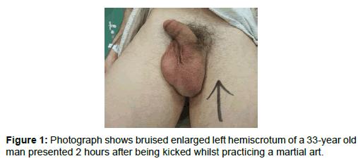 medical-surgical-urology-bruised-enlarged-left
