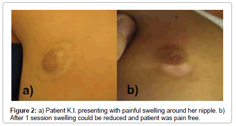 medical-surgical-urology-painful-swelling