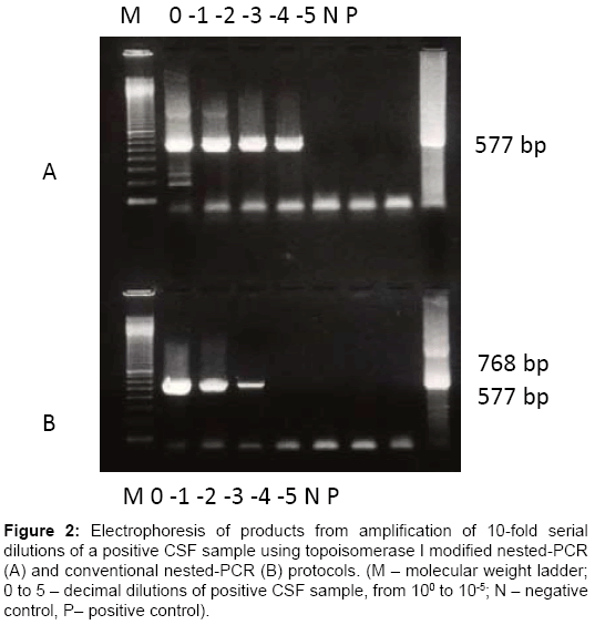 molecular-biology-Electrophoresis-product-amplification