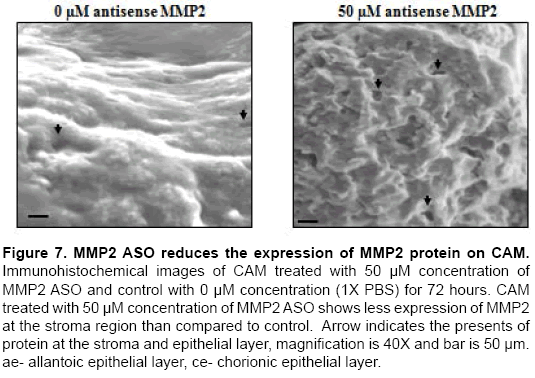 molecular-biology-MMP2-ASO-reduces-expression-MMP2