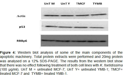 molecular-biology-Western-blot-analysis