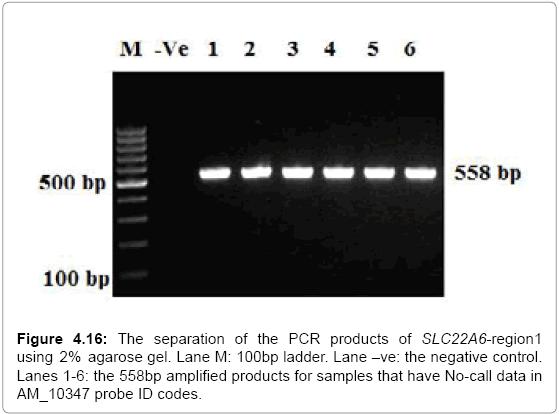 molecular-biology-separation-agarose-ladder