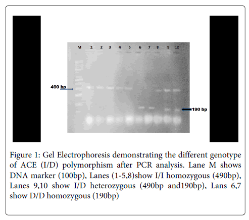 molecular-biomarkers-diagnosis-Electrophoresis-demonstrating