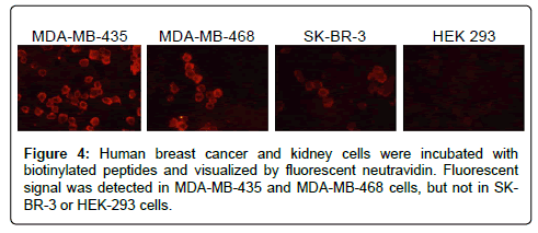 molecular-biomarkers-diagnosis-Human-breast
